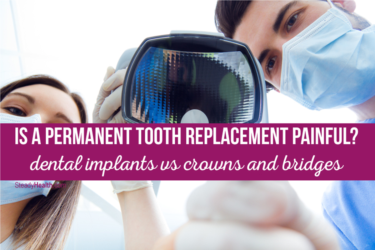 Is A Permanent Tooth Replacement Painful? Dental Implants ...