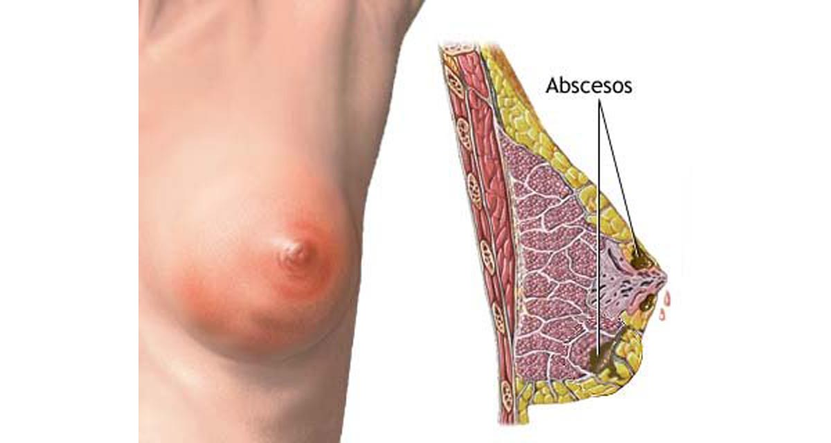 Breast infections - How to prevent mastitis? | Women's ...