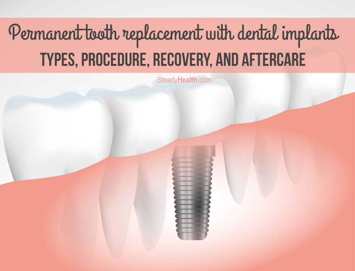 Permanent Tooth Replacement With Dental Implants: Types ...