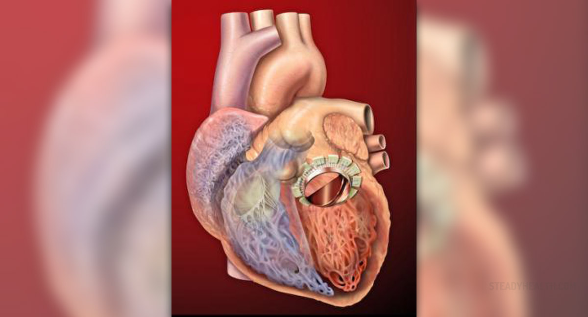 Complications After Mitral Valve Replacement General