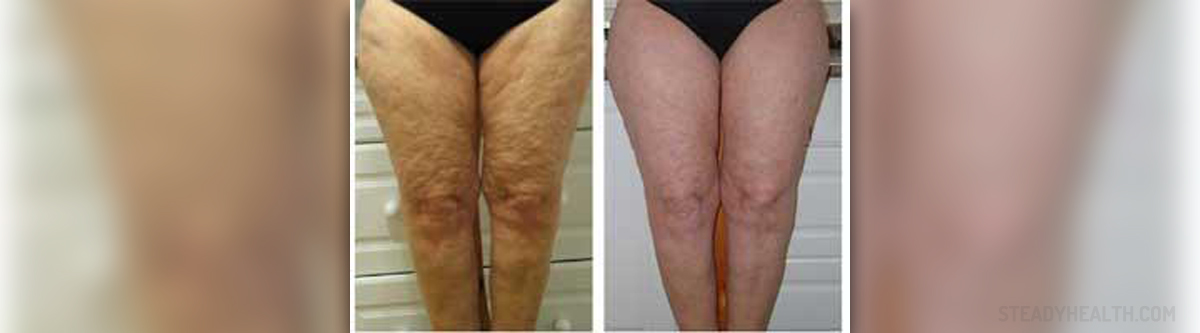 How To Remove Cellulite Natural Remedies You Can Use To Reduce Cellulite General Center Steadyhealth Com