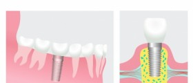Dental Implants as a Solution to Missing Teeth