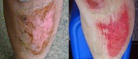 Home Remedies for Skin Burns and Cuts