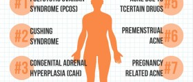 8 Medical Conditions That Might Cause Your Adult Acne