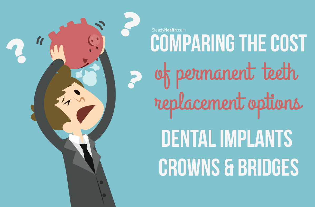 Dental Implant Quotes Comparing The Cost Of Permanent Teeth Replacement Options Dental