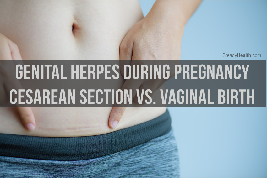 Genital Herpes During Pregnancy: Cesarean Section Vs ...