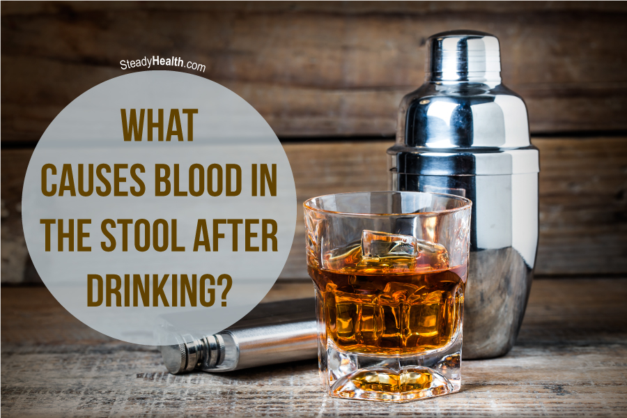 What Causes Blood In The Stool After Drinking