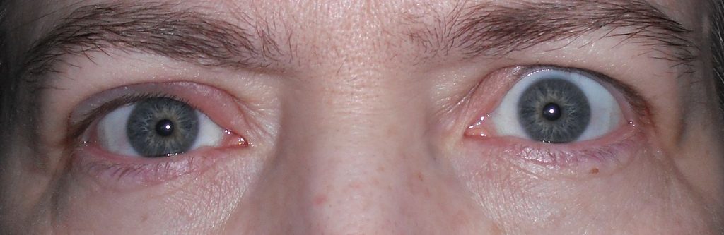 How To Treat A Stye At Home Eye Disorders And Diseases