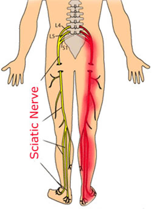 Treatment For Sciatic Nerve Pain Nervous System Disorders And