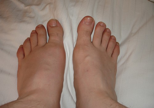 Gout: Causes And Prevention