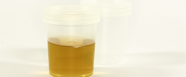 Orange Urine: Possible Causes | Urinary Tract Issues ...
