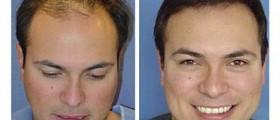 Permanent hair transplant method