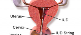 Chances of Getting Pregnant with an IUD (Mirena)