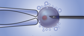 Who benefits from intracytoplasmic sperm injection (ICSI)