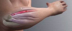 Therapy for tennis elbow