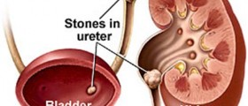 Kidney Stone Flush: Pros and cons