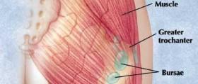 Hip Bursitis - Trochanteric Bursitis