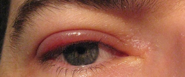 Swollen lower inner eyelid