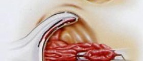 Hemorrhoidectomy: Preparation and Recovery