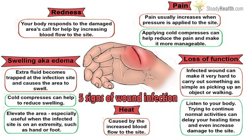 5-signs-of-wound-infection.jpg