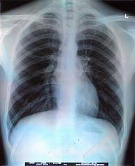 About acute breathlessness