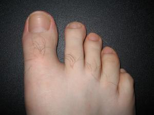 About bruised toenails