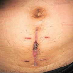 All about appendix removal