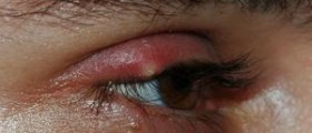 Alternative medicines, symptoms and treatment for stye