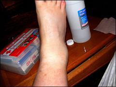 Ankle pain at night