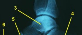 Ankle tendonitis review