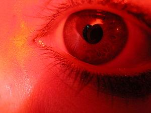 Bacterial eye infections