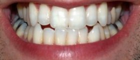 Be cautious of teeth whitening through by beauty salons