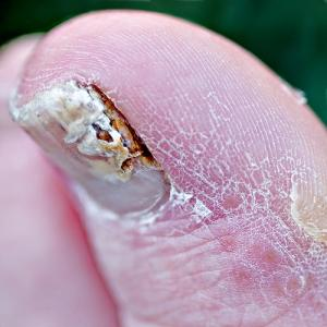 Best nail fungus medicines and treatments