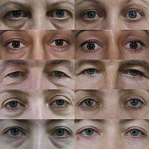 Blepharoplasty recovery time
