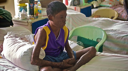 boy-with-leprosy.jpg