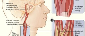 Carotid Artery Disease: Stenosis Symptoms and Treatments