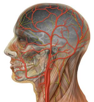 Carotid artery blockage surgery