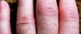 Causes and symptoms of arthritis pain