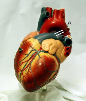Causes, symptoms and treatment for coronary heart disease