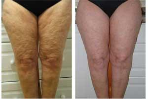 Cellulite reduction the easy way