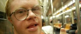 Characteristics of down syndrome