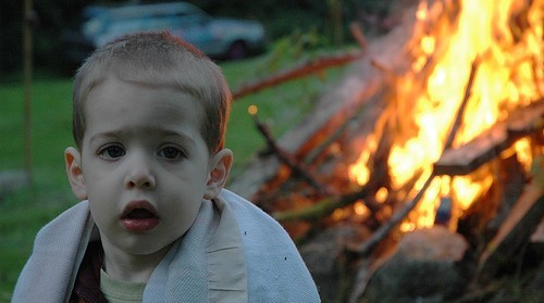 Child Safety Burns And Scalds Care Advice Injuries