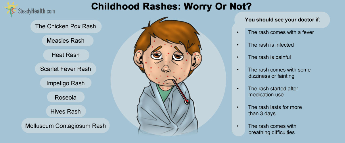 Why do you get a rash when you suffer from Chicken Pox?