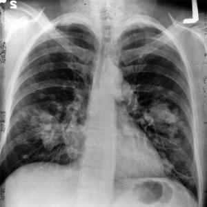 Chronic lung infection