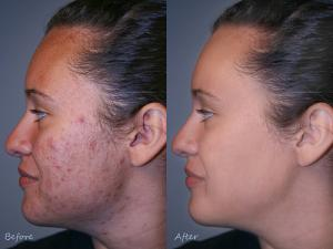 Clear skin fast with natural skin acne cure