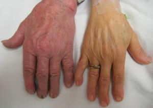 Complications of pernicious anaemia | General center ... B12 Deficiency Skin