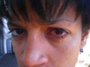 Conjunctivitis home remedy