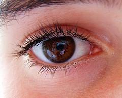 Dore dry skin on eyelids