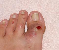 Dry skin on feet and diabetes