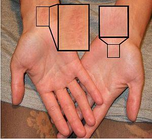 Early signs of carpal tunnel syndrome
